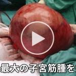 【閲覧注意】世界最大の子宮筋腫を摘出!!気絶するほど痛い生理痛は、子宮筋腫の可能性も!?