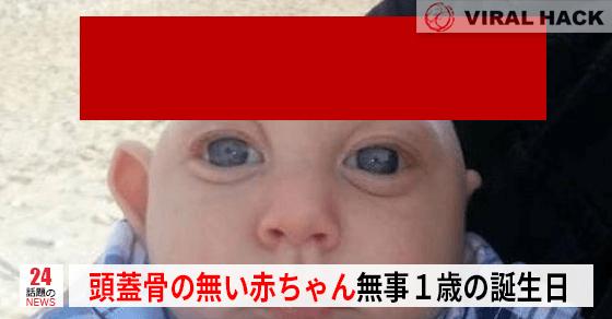 頭蓋骨の無い赤ちゃんが順調に育ち1歳に!⇒元気そうです!!